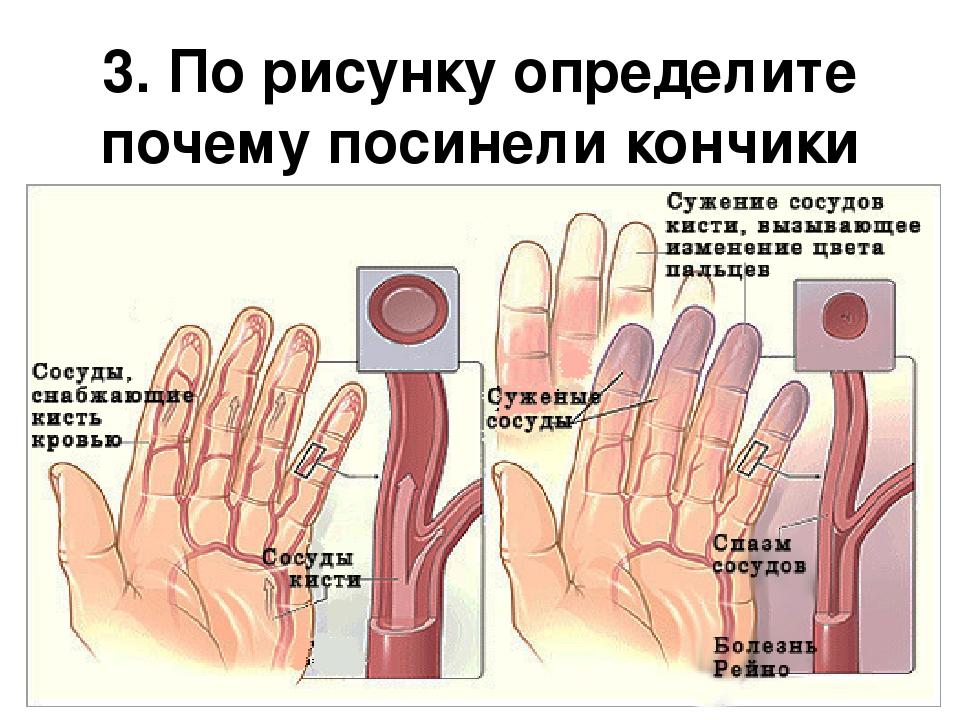 Почему на руках немеют кончики пальцев