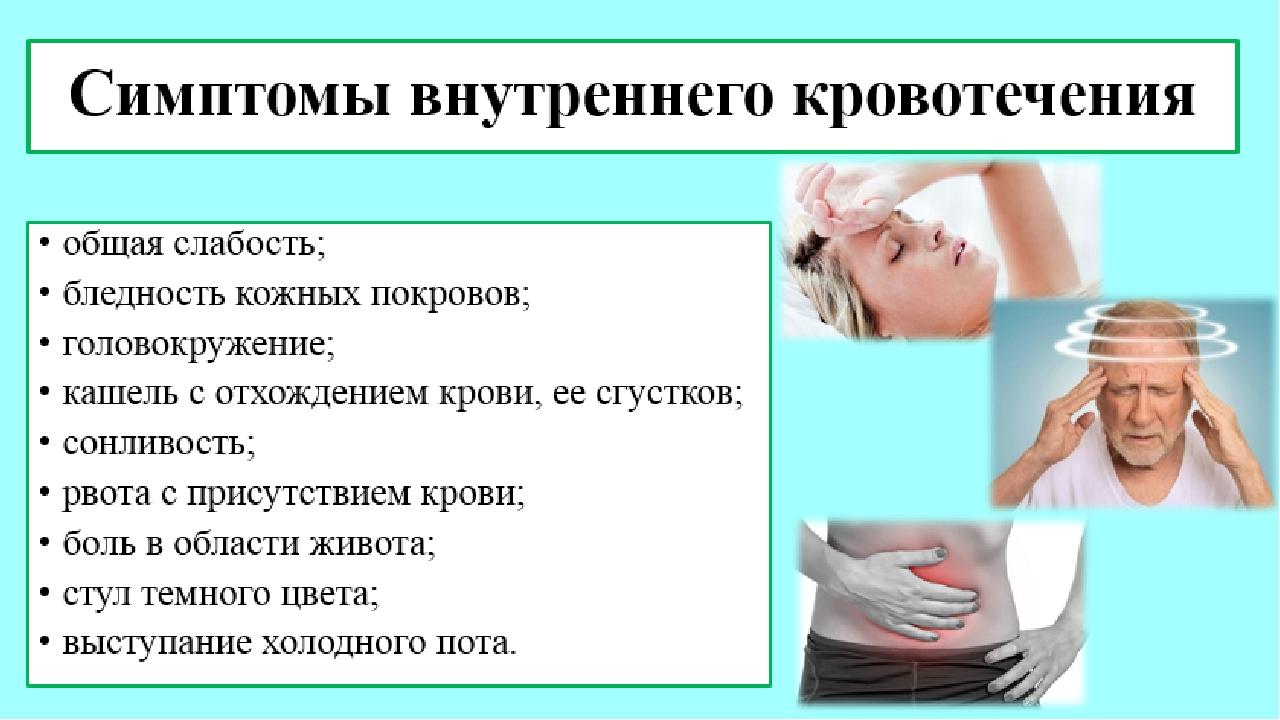 симптомы внутреннего кровотечения у женщин строка