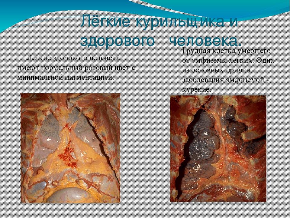 клетки курильщика картинки один