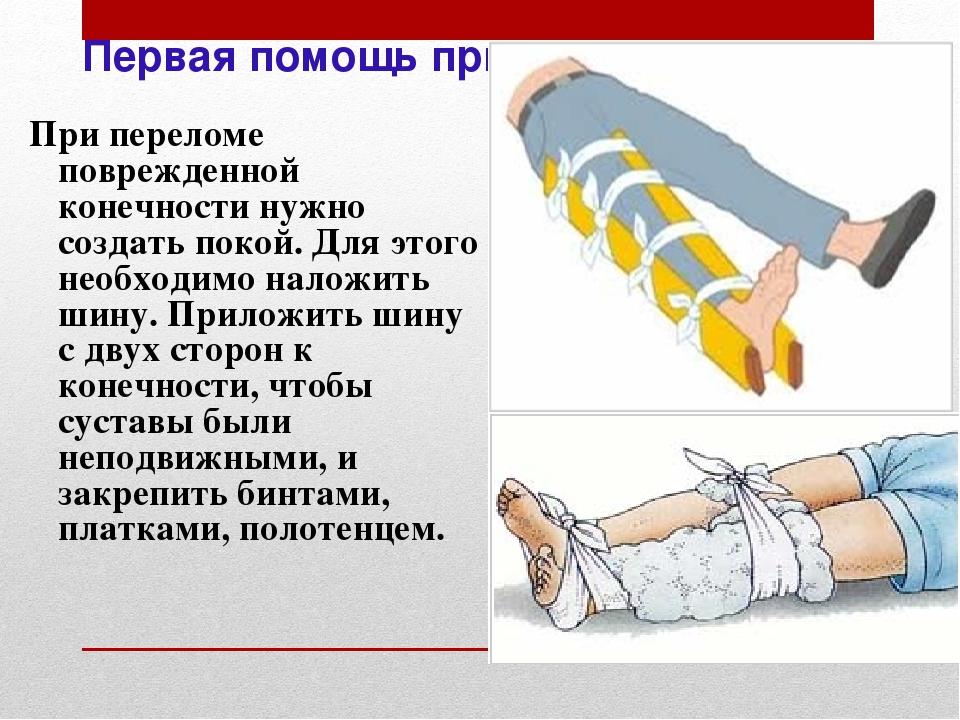 Неотложная помощь при переломах конечностей