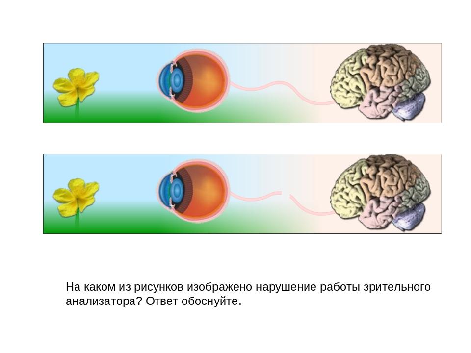 На каком из рисунков изображено нарушение работы зрительного анализатора? Отв...