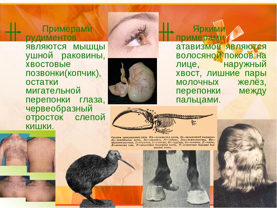 Примерами рудиментов являются мышцы ушной раковины, хвостовые позвонки(копч...