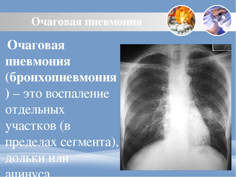 Очаговая пневмония у взрослых