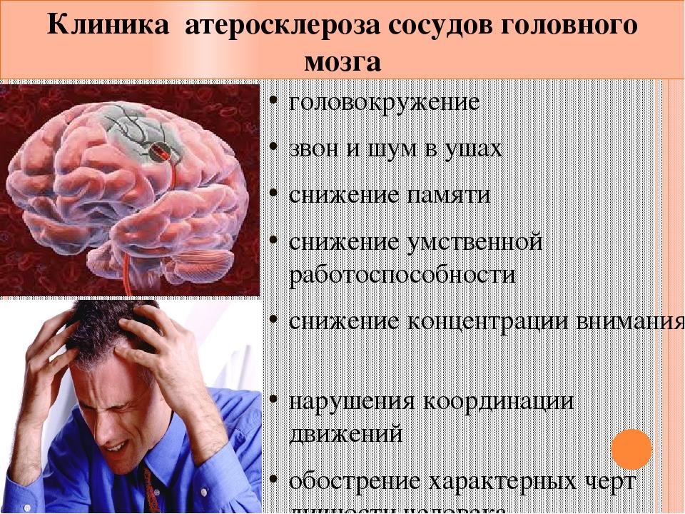 Сосуды головы головокружение лекарства