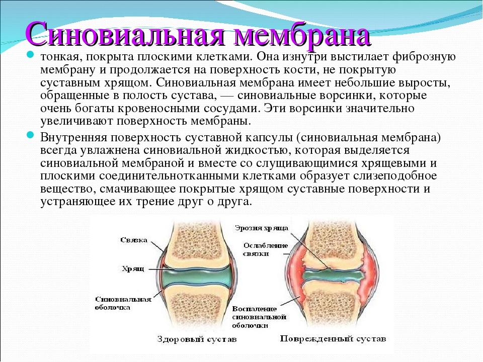Фиброзная мембрана суставной сумки упражнения при заболевании суставов в картинках