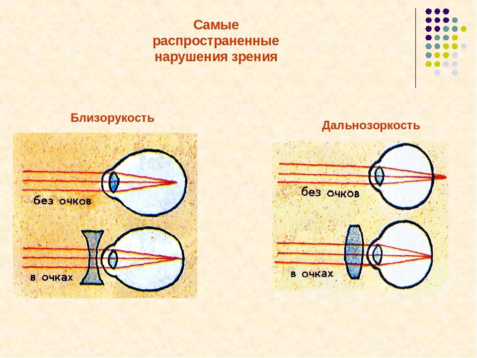 Профилактика дальнозоркости картинки
