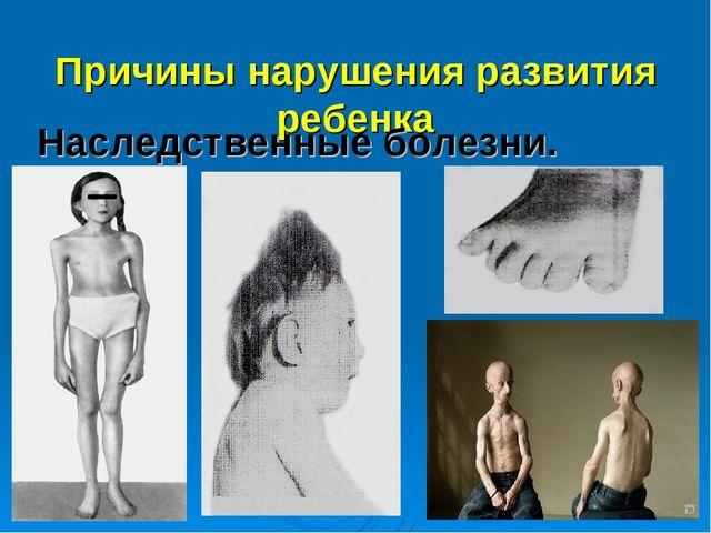 Причины нарушения развития ребенка Наследственные болезни.