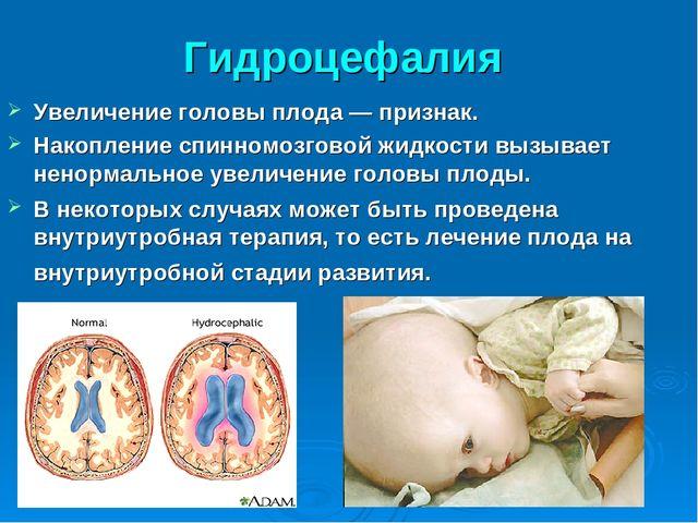 Гидроцефалия Увеличение головы плода — признак. Накопление спинномозговой жид...