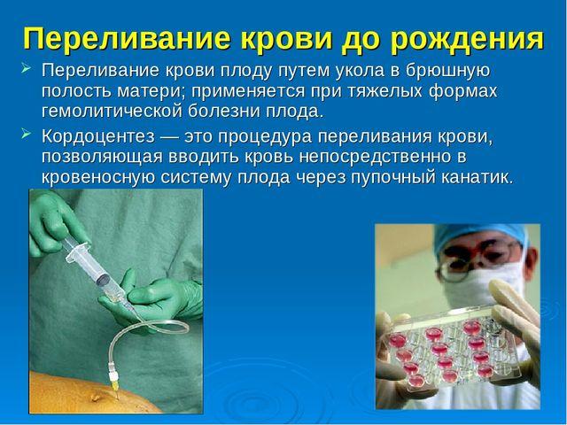 Переливание крови до рождения Переливание крови плоду путем укола в брюшную п...