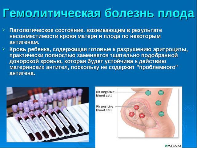 Гемолитическая болезнь плода Патологическое состояние, возникающим в результа...