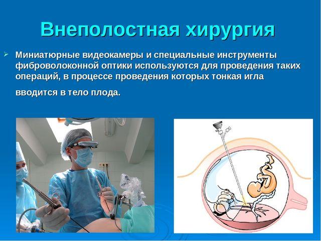 Внеполостная хирургия Миниатюрные видеокамеры и специальные инструменты фибро...