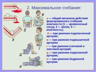 а — общий механизм действия форсированного сгибания конечности (1 — кровеносн