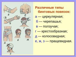 Различные типы бинтовых повязок: а — циркулярная; б — черепашья; в — ползучая