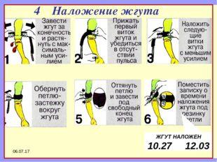 * ШАГ 1 ШАГ 2 ШАГ 3 ШАГ 4 ШАГ 5 ШАГ 6 4 Наложение жгута ЖГУТ НАЛОЖЕН 10.27 12