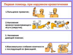 Первая помощь при наружном кровотечении 1.Пальцевое прижатие; 2.Наложение кро