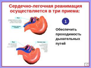 Сердечно-легочная реанимация осуществляется в три приема: Обеспечить проходим