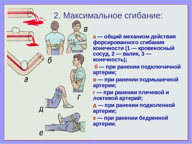 а — общий механизм действия форсированного сгибания конечности (1 — кровеносн...