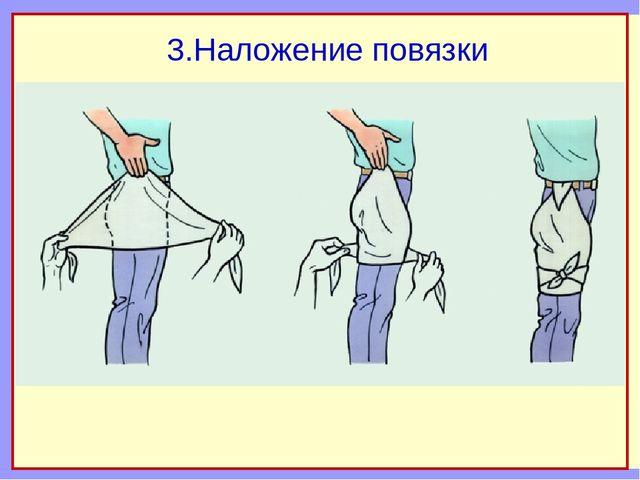 3.Наложение повязки