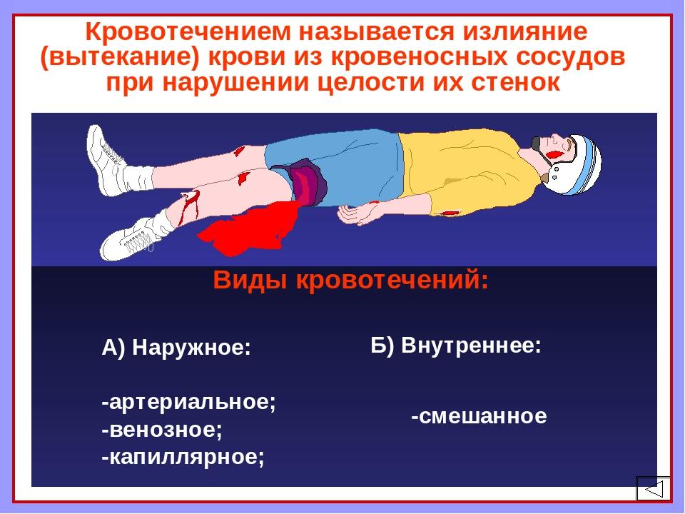 Кровотечением называется излияние (вытекание) крови из кровеносных сосудов п...