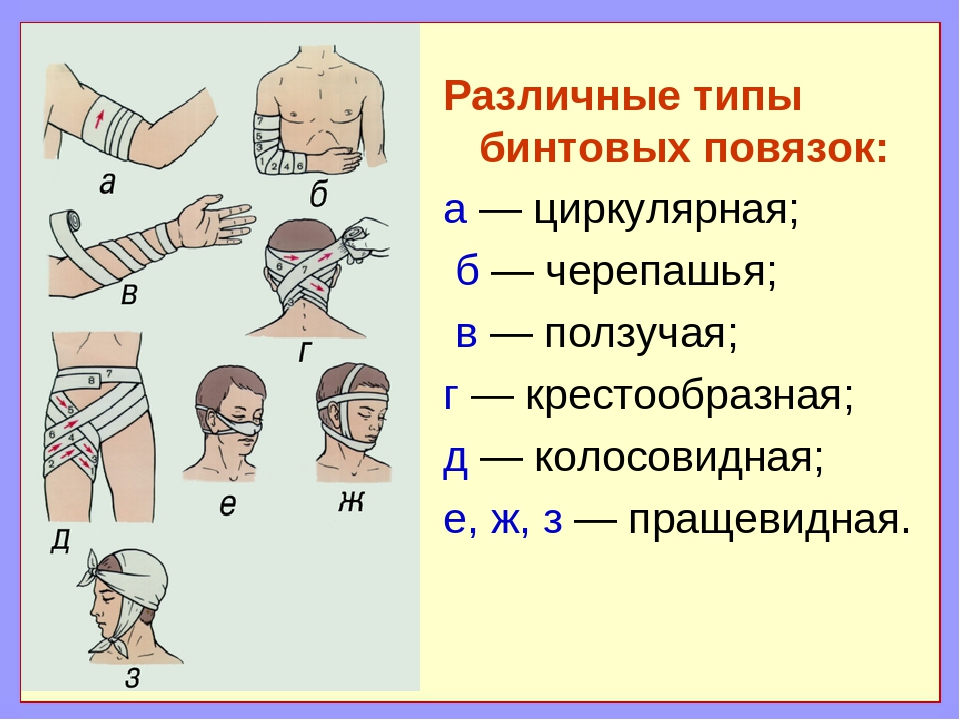 Различные типы бинтовых повязок: а — циркулярная; б — черепашья; в — ползучая...