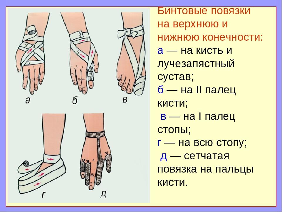 Бинтовые повязки на верхнюю и нижнюю конечности: а — на кисть и лучезапястный...