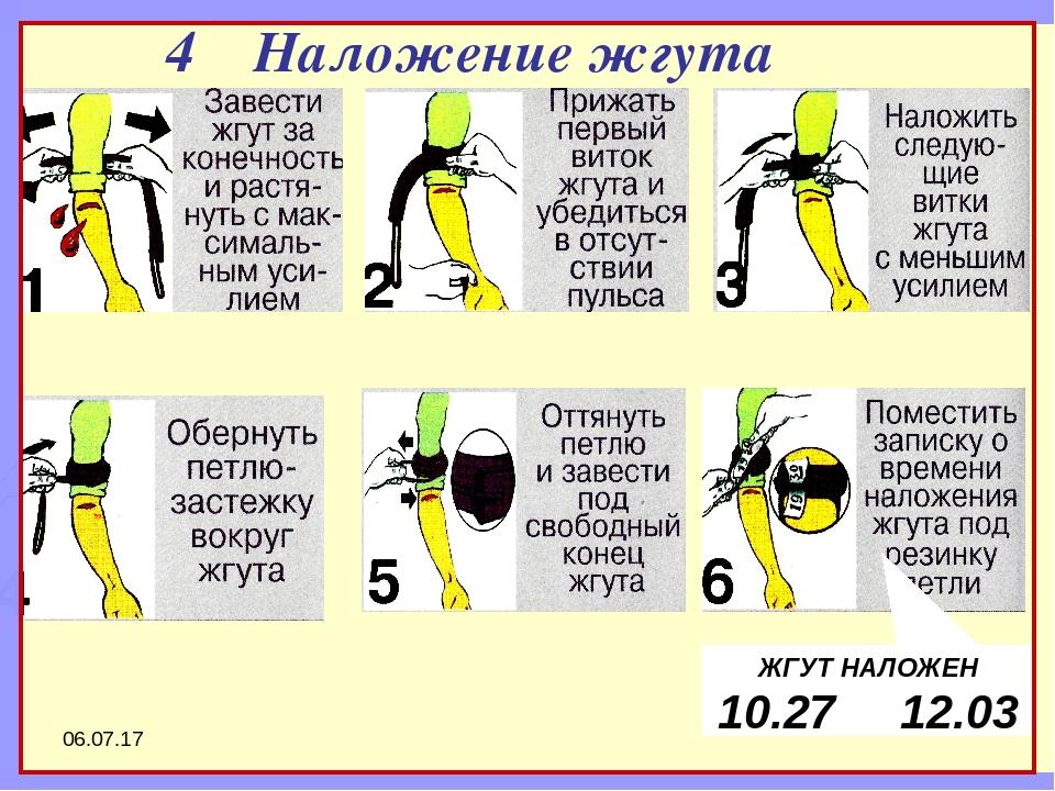 * ШАГ 1 ШАГ 2 ШАГ 3 ШАГ 4 ШАГ 5 ШАГ 6 4 Наложение жгута ЖГУТ НАЛОЖЕН 10.27 12...