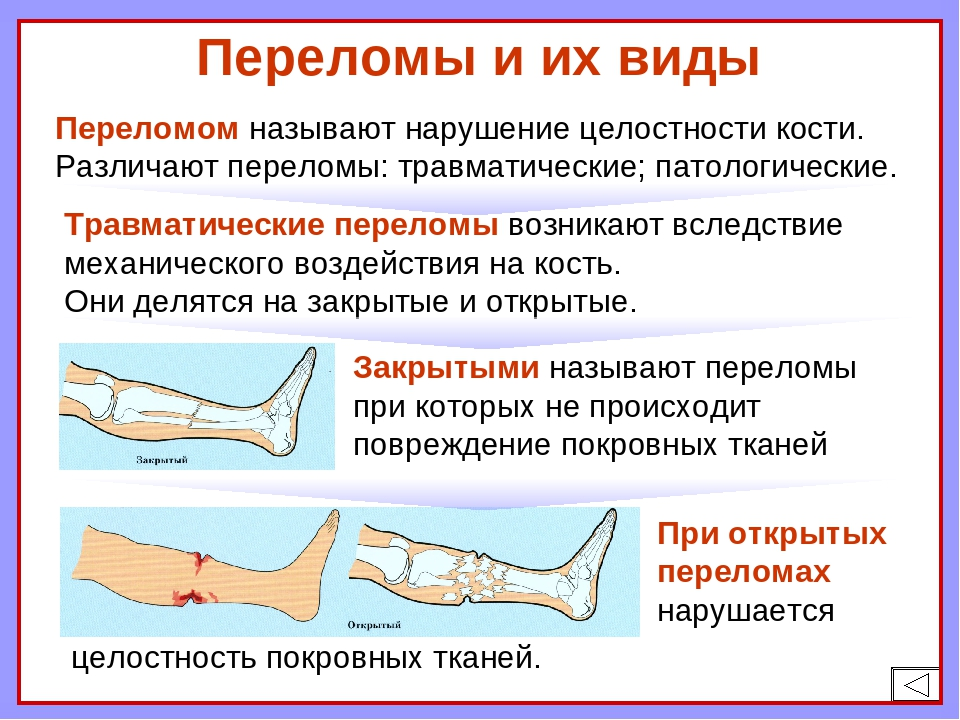 Определение перелома кости