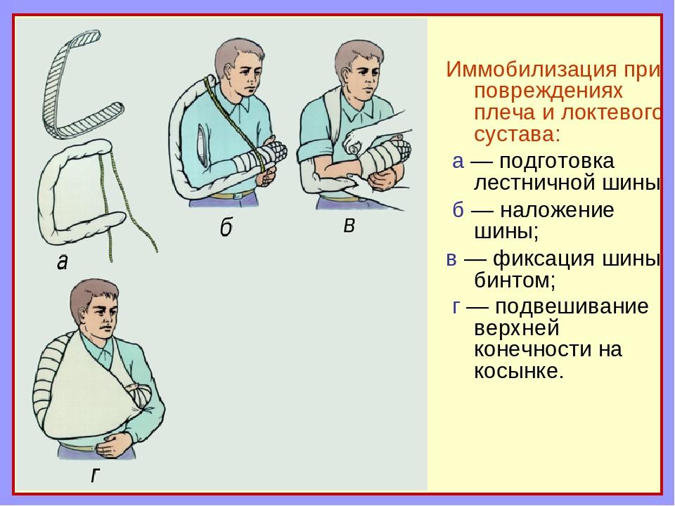 Иммобилизация при повреждениях плеча и локтевого сустава: а — подготовка лест...