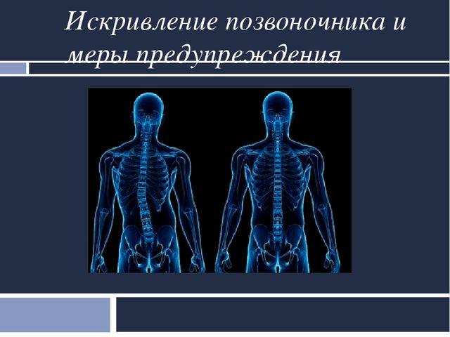 Корсет медицинский эластичный пояснично крестцовый с ребрами жесткости
