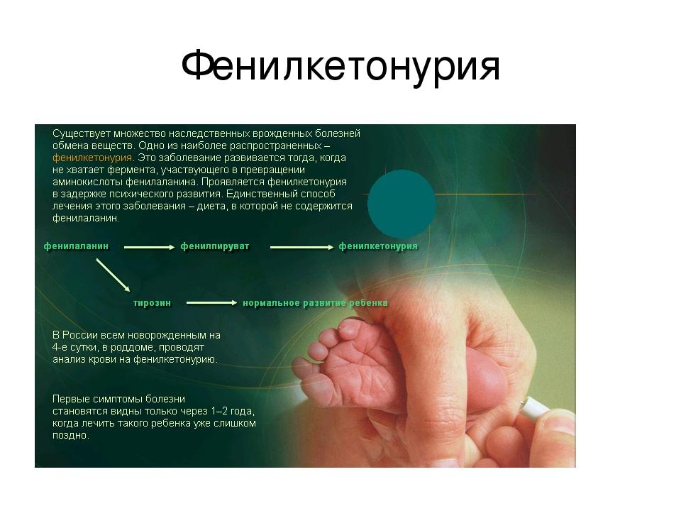 characteristics of phenylketonuria