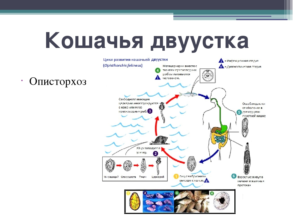Кошачья двуустка Описторхоз