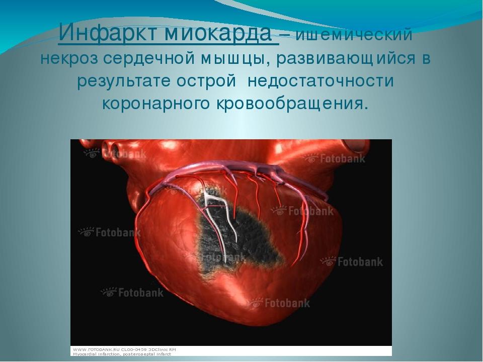 Инфаркт миокарда – ишемический некроз сердечной мышцы, развивающийся в резуль...