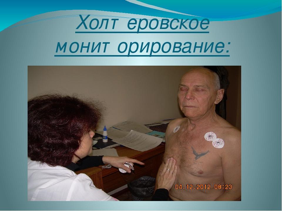 Холтеровское мониторирование: