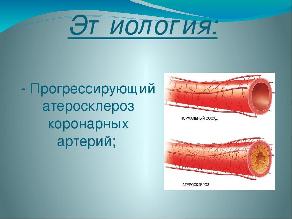 Этиология: - Прогрессирующий атеросклероз коронарных артерий;