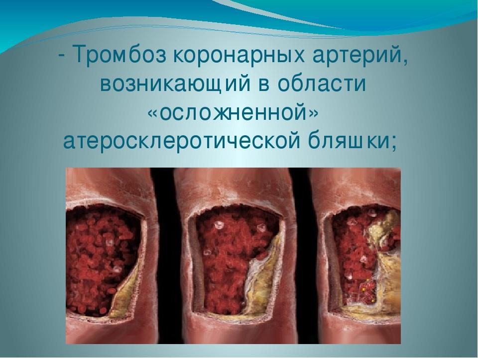 - Тромбоз коронарных артерий, возникающий в области «осложненной» атеросклеро...