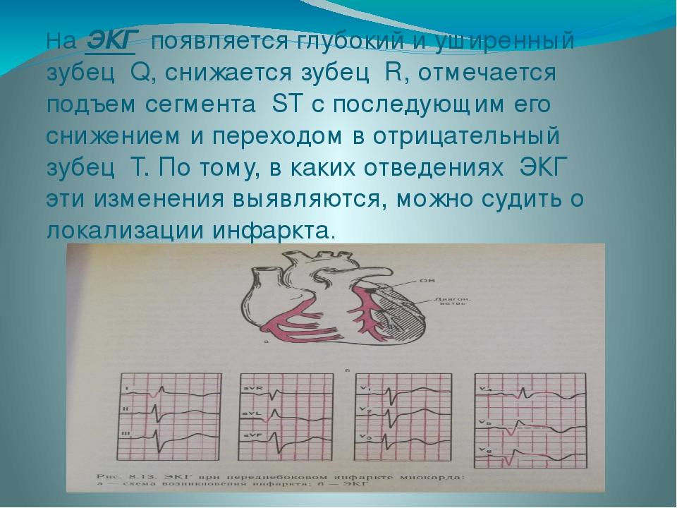 На ЭКГ появляется глубокий и уширенный зубец Q, снижается зубец R, отмечает...
