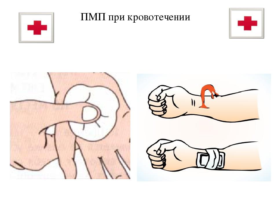 Первая медицинская помощь при кровотечениях в картинках