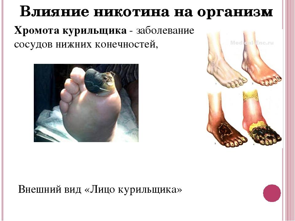 Курение влияние на ноги