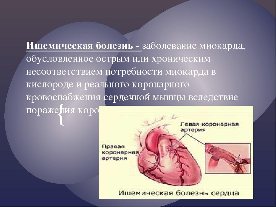 Ишемическая болезнь - заболевание миокарда, обусловленное острым или хроничес...
