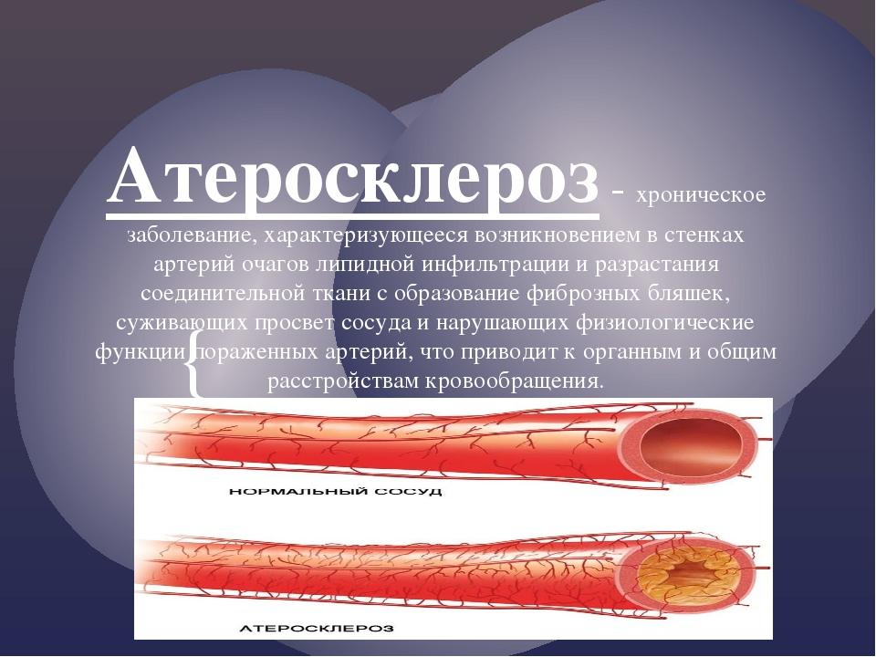 Атеросклероз - хроническое заболевание, характеризующееся возникновением в ст...