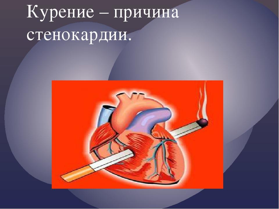 Курение – причина стенокардии. {