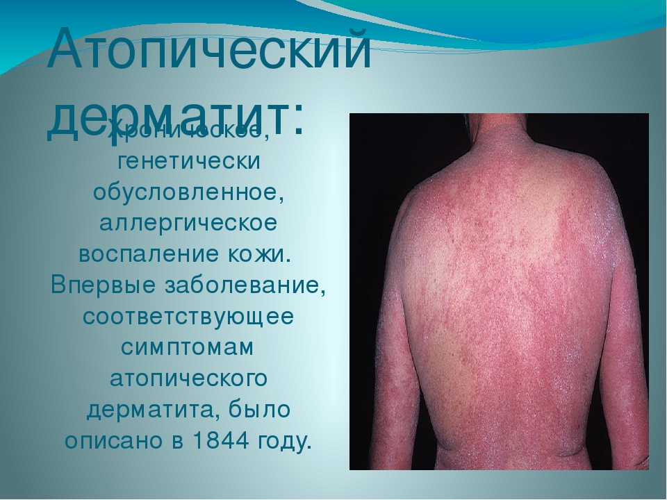 Атопический дерматит: Хроническое, генетически обусловленное, аллергическое в...