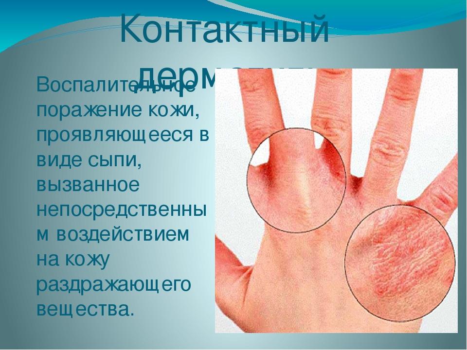 Контактный дерматит: Воспалительное поражение кожи, проявляющееся в виде сыпи...