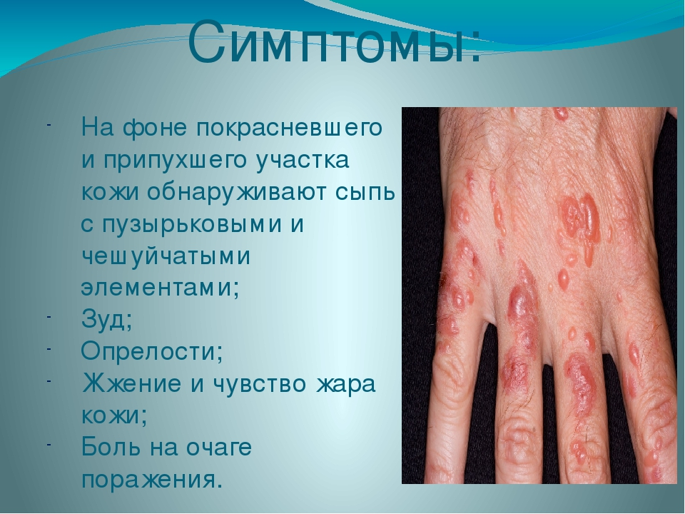 Симптомы: На фоне покрасневшего и припухшего участка кожи обнаруживают сыпь с...