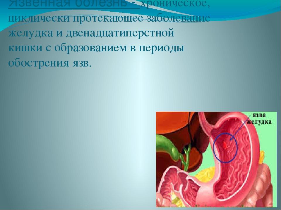 Язвенная болезнь - хроническое, циклически протекающее заболевание желудка и...