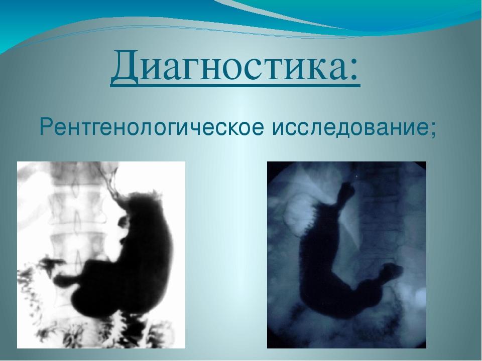 Диагностика: Рентгенологическое исследование;