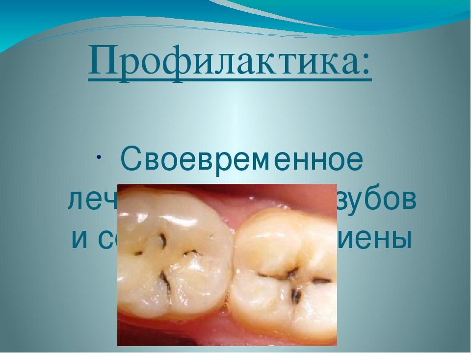 Профилактика: Своевременное лечение кариеса зубов и соблюдение гигиены полост...