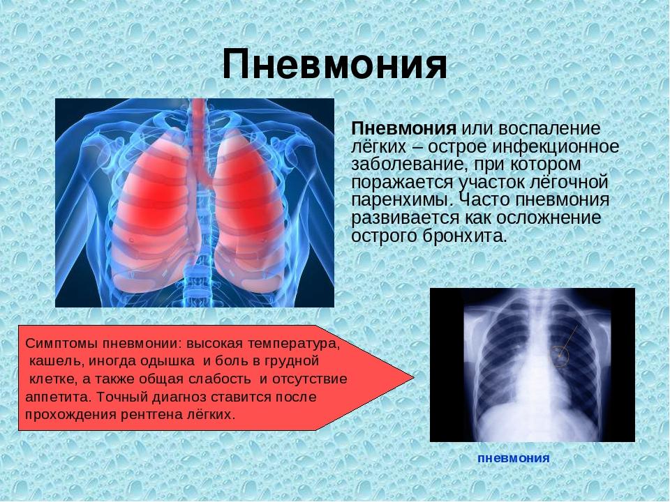 Лечение при воспалении легких у взрослых
