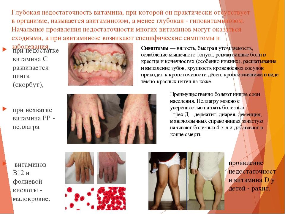 витамин д недостаток у взрослых отзывы магазинов России других