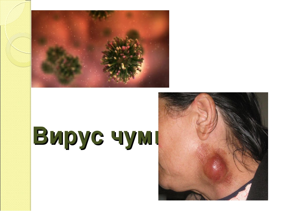 Вирус чумы